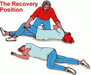 The recovery position for someone who has had a seizure